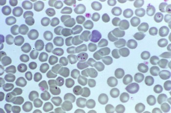 parasita plasmodium falciparum