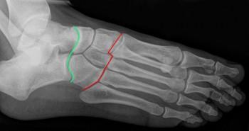 radiografia do pé com ligamentos de chopart e lisfranc